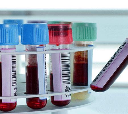 تست-های-آزمایش-خون