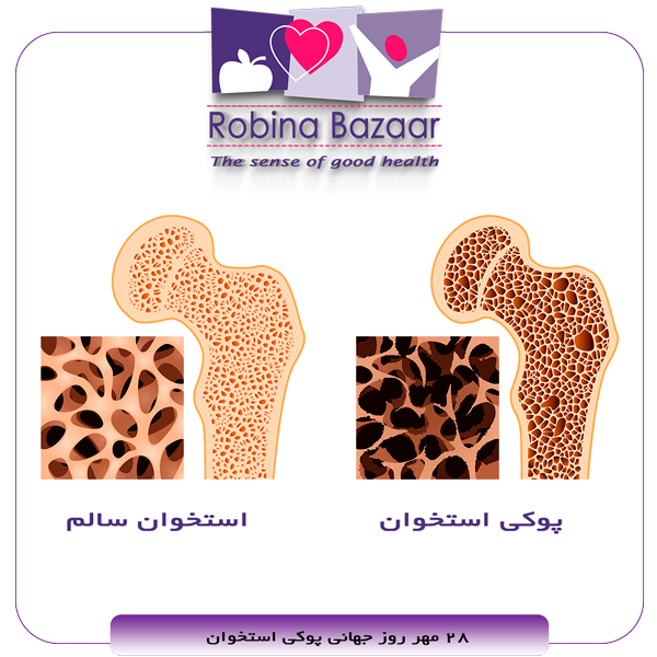 کمپین آگاهی سلامت روز جهانی پوکی استخوان