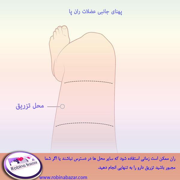 محل تزریق عضلانی در عضلات ران پا