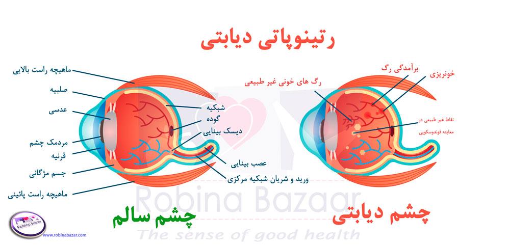 نشانه های رتینوپاتی دیابتی چشم